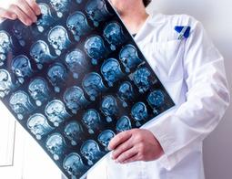 Shunt Neurosurgery